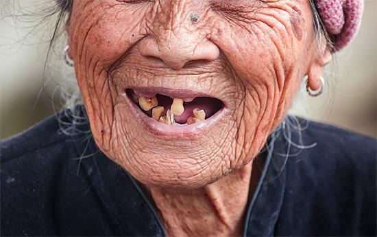 Обратите внимание, что у старушек, заговаривающих зубную боль (и прочие хвори), ситуация в ротовой полости обстоит далеко не лучшим образом...
