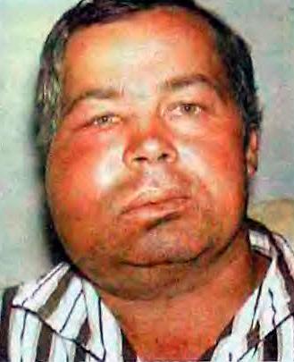 На фото показан пример одонтогенной флегмоны - опасного для жизни осложнения.