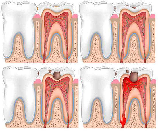 Попадание бактерий через кариозную полость в пульповую камеру зуба неминуемо приводит к воспалению пульпы - и это наиболее частный механизм развития острого пульпита.