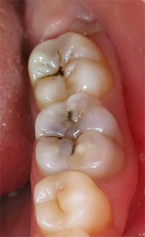 По причине того, что боль при остром гнойном пульпите часто не имеет определенной локализации, врачу без соответствующего оборудования бывает довольно сложно найти больной зуб.