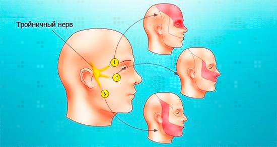 При остром диффузном пульпите сильная боль может отдавать по ветвям тройничного нерва в различные участки челюстно-лицевой области.
