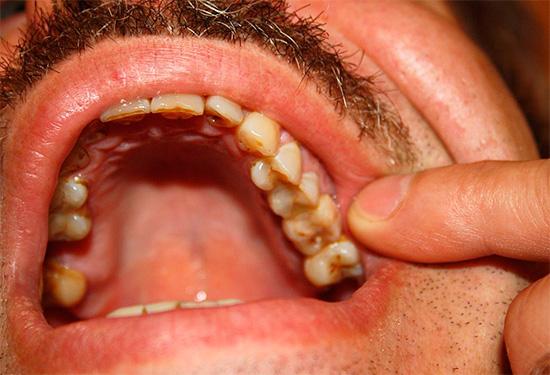Если пациент может точно указать на больной зуб, то это в большинстве случаев соответствует серозной форме пульпита.
