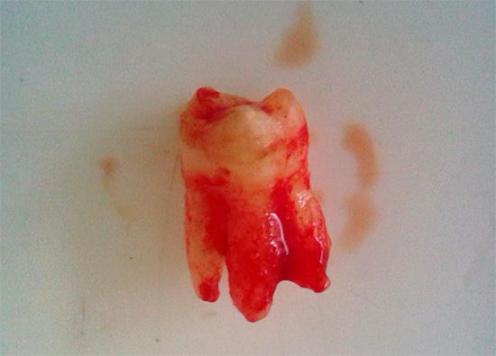 Неспособность пациента точно определить источник болей иногда приводит к тому, что стоматолог-хирург удаляет другой, относительно здоровый зуб, а то и не один...