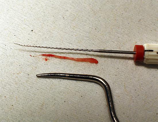 На фотографии показана извлеченная из корневого канала зуба пульпа