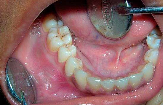 Заговоры от зубной боли: обзор наиболее сильных вариантов