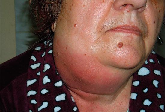 На фотографии показана одонтогенная флегмона - опасное для жизни воспаление.
