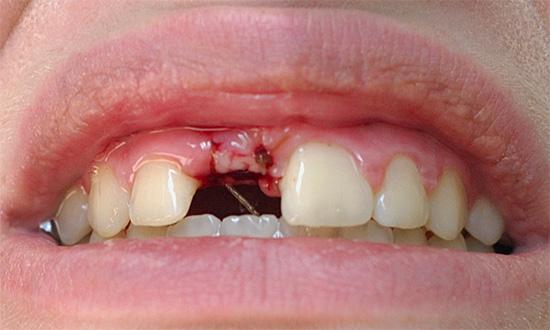 Даже если зубная лунка после самостоятельно проведенного лечения перестала гноиться, все равно следует обратиться за консультацией к стоматологу.