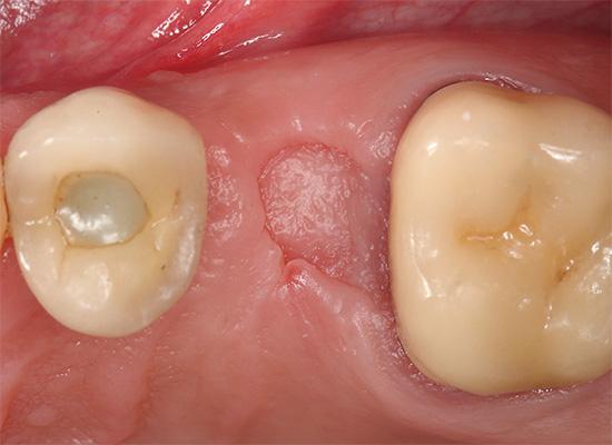 Полностью зажившая десна - внешний вид через два месяца после удаления зуба.
