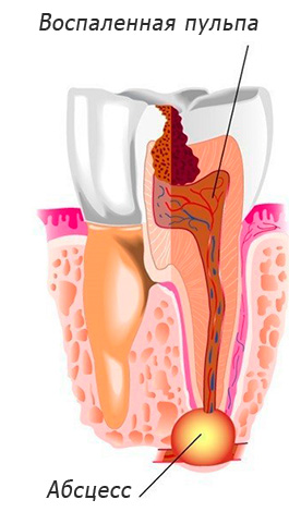 Схематичный пример кисты на корне зуба