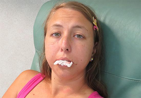 Самый простой способ остановки кровотечения - крепко зажать между зубами (или деснами) марлевый тампон.