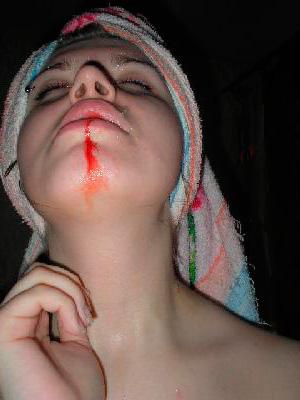 Многих пациентов длительное кровотечение из зубной лунки пугает возможностью каких-либо тяжелых осложнений...