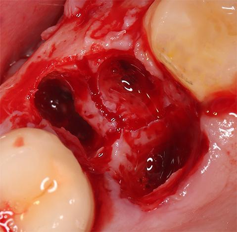 На фото показана свежая кровоточащая лунка на месте удаленного зуба.