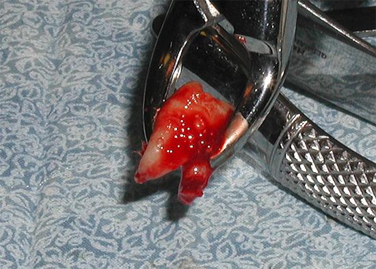 Нередко кровотечение из раны открывается уже дома, когда сосудосуживающее действие адреналина из анестетика проходит.