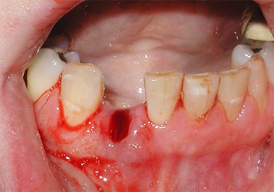 В норме кровотечение после удаления зуба должно останавливаться через 10-30 минут.