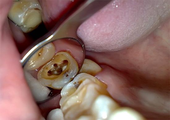 Четырехканальный зуб