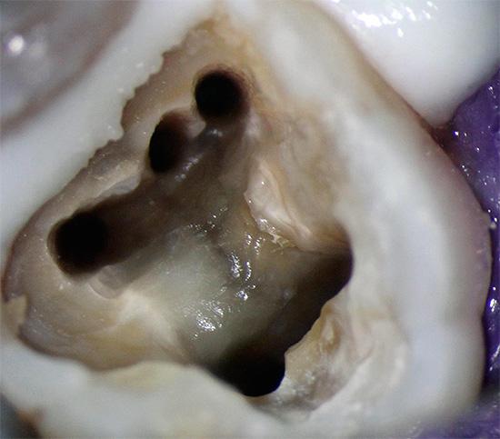 Пятиканальный зуб
