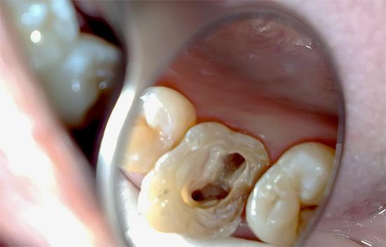 Цена на лечение пульпита трехканального зуба обычно достаточно высокая, что обусловлено повышенной сложностью работы, а также увеличенными затратами времени и материалов.