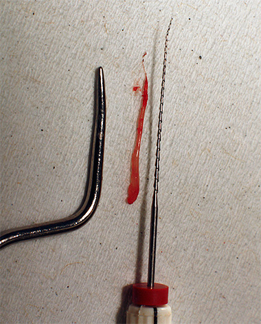 На фото показана извлеченная из зубного канала пульпа.