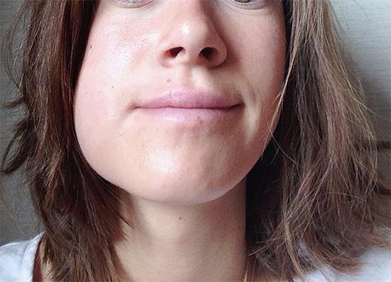 Попробуем разобраться, что нужно делать и как себя правильно вести, если после процедуры удаления зуба у вас вдруг сильно опухла щека...