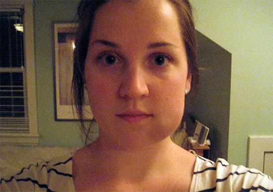 Для отслеживания своего состояния полезно периодически делать фотографии опухшей щеки, и затем по ним оценивать - уменьшается ли опухоль, или, наоборот, увеличивается.