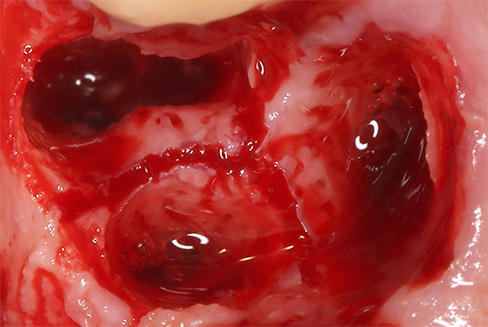 Удаление зуба всегда сопряжено с травмой окружающих его тканей, поэтому они естественным образом воспаляются.