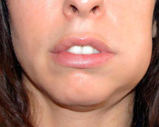 Очень часто после удаления зуба температура в тот же день (обычно ближе к вечеру) сильно поднимается.