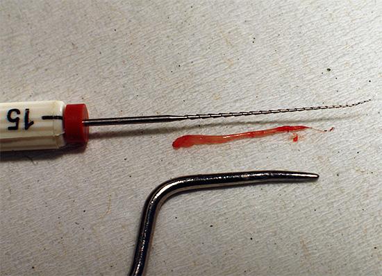 Знакомимся с особенностями и интересными нюансами процедуры удаления нерва из зуба...