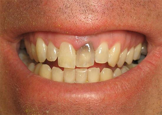 Иногда после лечения пульпита зуб может сильно потемнеть