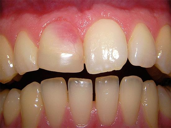 А здесь показан пример розового зуба, окраска которого появилась вследствие использования резорцин-формалиновой пасты при лечении канала.