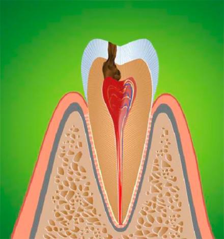Воспаление зубного нерва приводит к пульпиту, который обычно сопровождается острой болью.