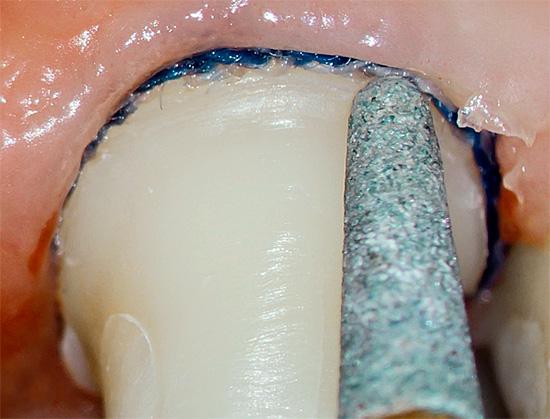 В ходе обтачивания зуба под коронку нерв внутри него может перегреться, что впоследствии приведет к пульпиту.