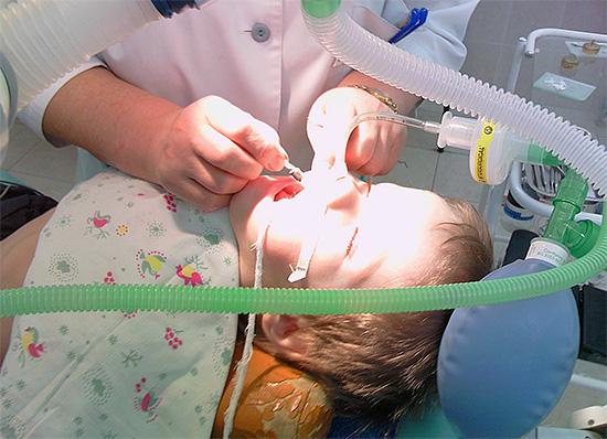 Дыхательная трубка и прочие элементы оборудования иногда мешают врачу проведению манипуляций в ротовой полости пациента.