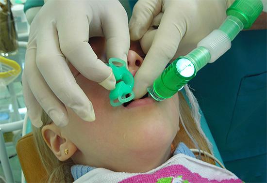 Если ребенок очень боится лечить зубы, то использование общей анестезии может оказаться чуть ли не единственным способом оказания нормальной стоматологической помощи.