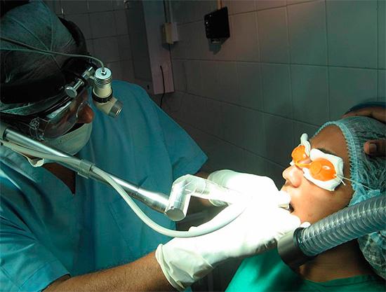 Примерно так может выглядеть процедура лечения зубов под общей анестезией (наркозом).