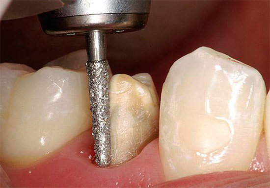 При обтачивании зуба под коронку пульпа может перегреться, что в дальнейшем также потребует лечения...