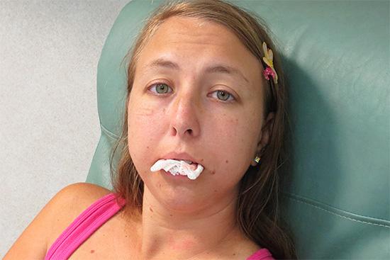Стандартный способ остановки кровотечения после удаления зуба - сильное прижатие лунки марлевым тампоном.