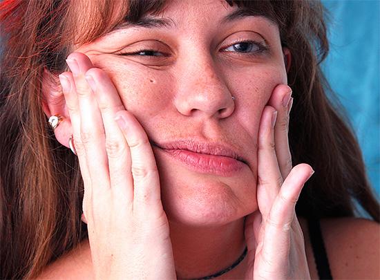 К сожалению, иногда парестезия после удаления зуба сохраняется навсегда.