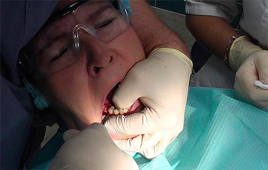 Поскольку врач прикладывает при удалении зуба значительное усилие, соскальзывание инструмента иногда приводит к серьезным травмам окружающих мягких тканей.