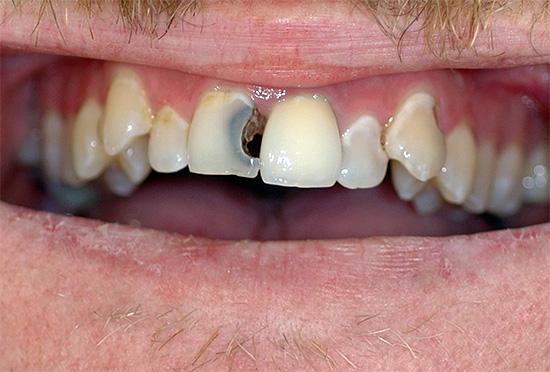 При сильной зубной боли лучше воспользоваться другим, более мощным препаратом.