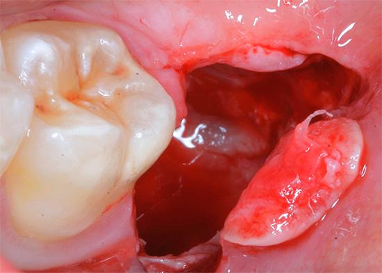 К числу неприятных последствий удаления зуба относится также длительная кровоточивость лунки, кровь из которой может не останавливаться несколько часов или даже сутки.
