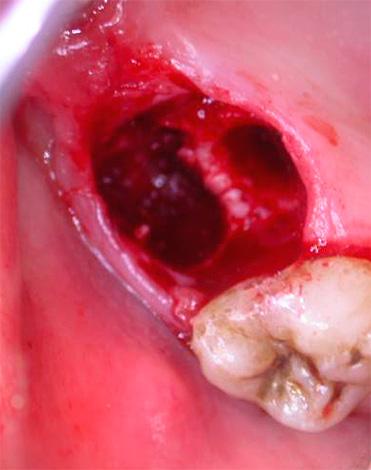 Достаточно серьезной проблемой, возникающей иногда после удаления зубов, является также альвеолит - воспаление стенок лунки.