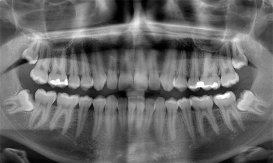Неправильно растущие зубы мудрости могут значительно нарушить прикус.