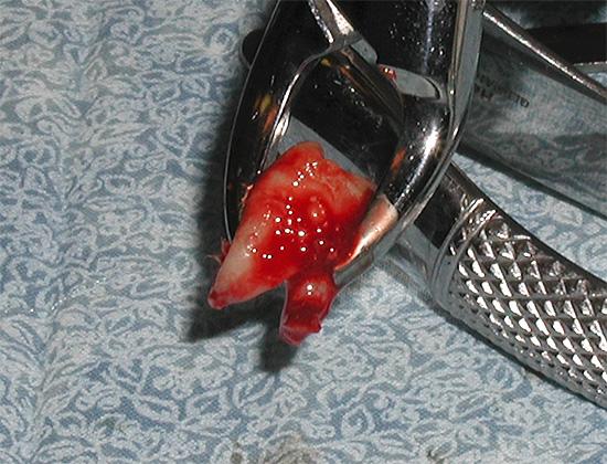 Удаление зубов мудрости, расположенных на верхней челюсти, имеет свою специфику, о которой мы дальше и поговорим...