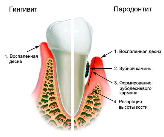 На картинке показана суть процессов, происходящих с десной и костной тканью при гингивите и пародонтите.