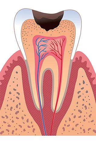 Если надолго поместить чеснок в глубокую кариозную полость, то это может привести к отмиранию пульпы.
