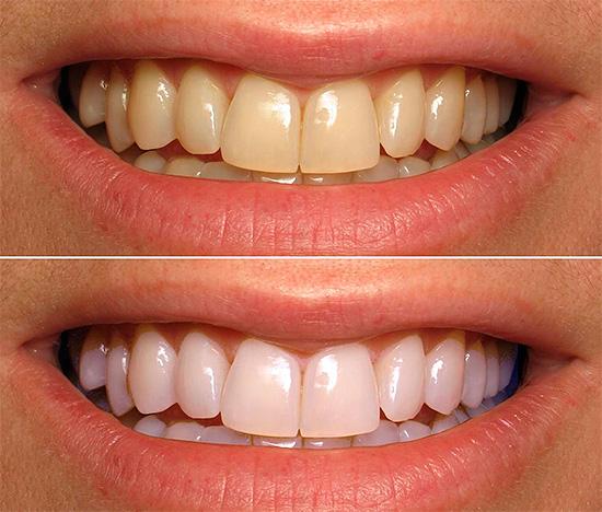 Кабинетное отбеливание зубов является самым эффективным способом (на фото показано состояние зоны улыбки до и после процедуры).