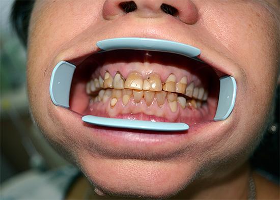 Наличие большого количества пломб и кариозных очагов является противопоказанием к отбеливанию зубов химическим способом.