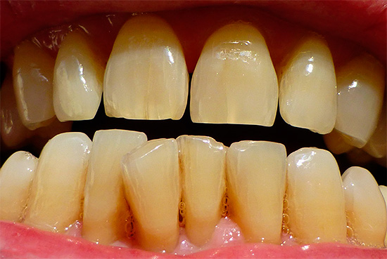 Прежде чем начинать отбеливать себе зубы полезно для начала разобраться, какой способ будет предпочтителен именно в вашей ситуации.