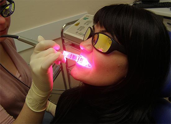 Лазерное отбеливание зубов по своей сути является химическим, а лазер используется лишь как активатор перекисных соединений.