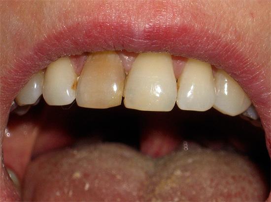 Внутриканальное отбеливание позволяет осветлить потемневшие мертвые зубы.